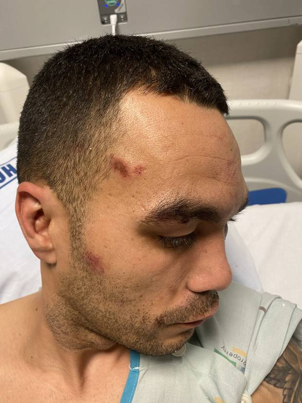 Nikau Andrews has injuries on the side of his head which he believes were caused by being pushed around on the ground. Photo / Supplied