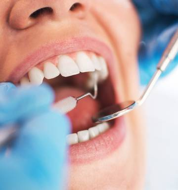 Abano shares rise 10% as dental sector consolidation shakes