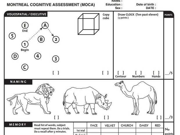 Part of the Montreal Cognitive Assessment. Photo / Supplied