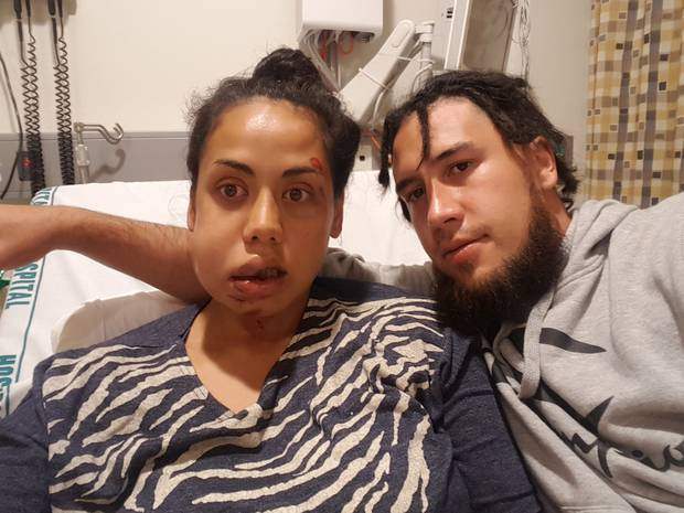 25-year-old Raven Torea was attacked on Waiheke Island. Photo / Supplied