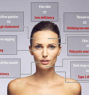 What your face says about your health - NZ Herald