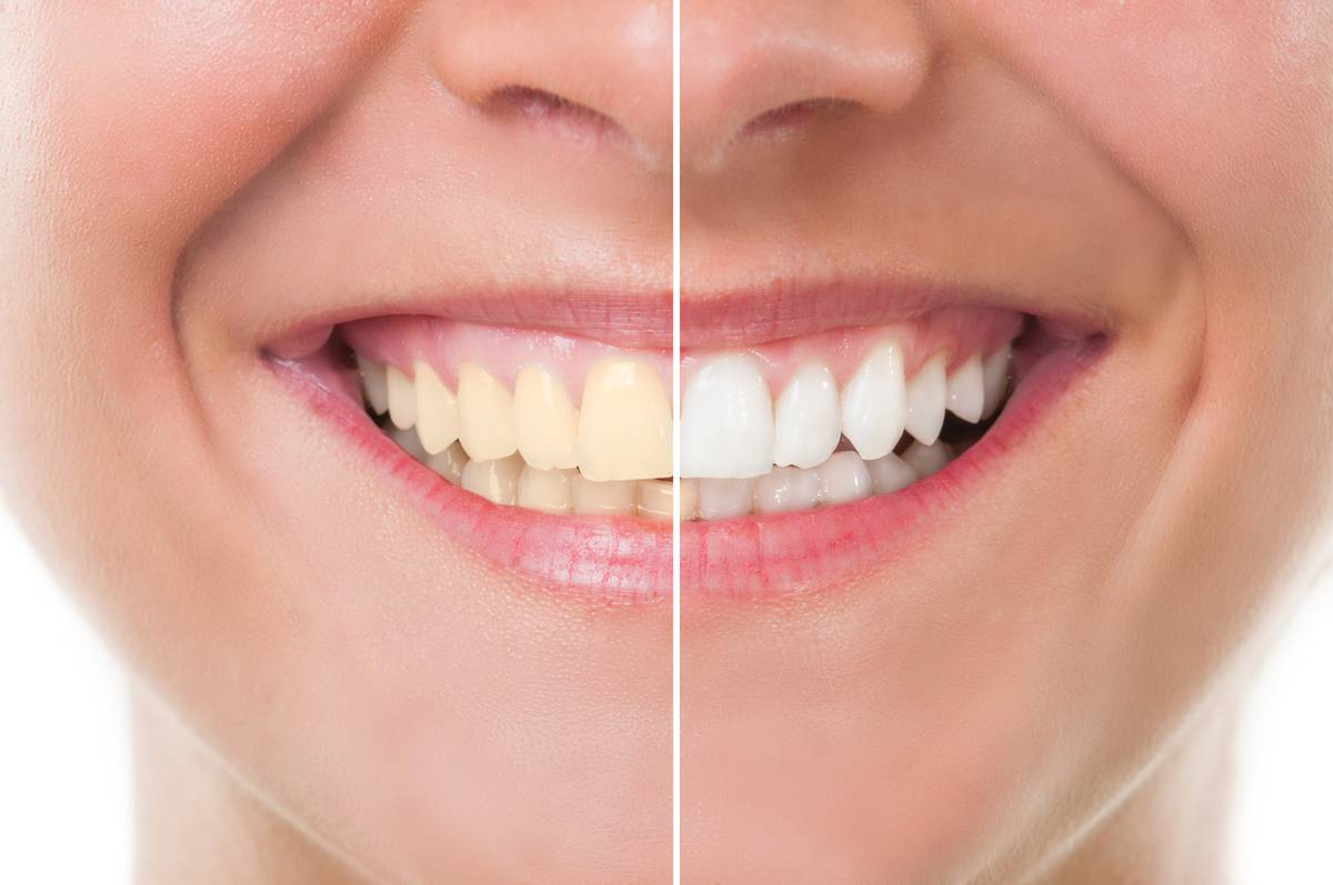 Five Experts Explain Is Whitening Bad For Your Teeth Nz Herald