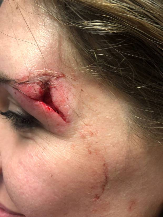 It took 10 stitches to sew up the gash. Photo / Supplied