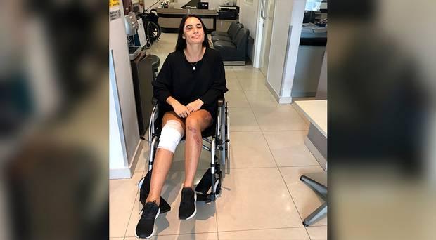 Kobi still has difficulty walking for long periods following her recovery. Photo / Kobi Bracken