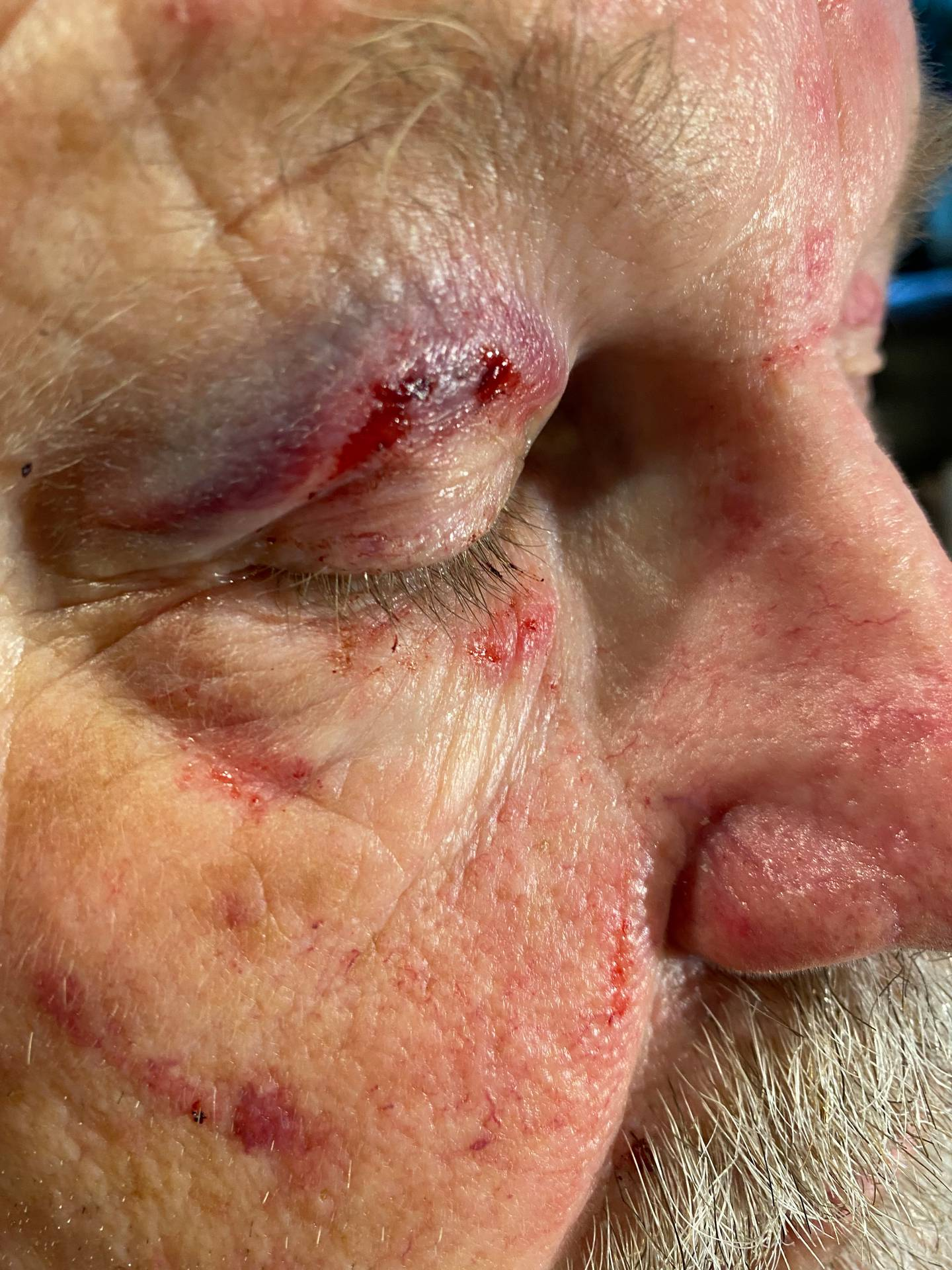 The 69-year-old bus driver had his glasses smashed as a teenager tried to gouge his eye. Photo / Supplied